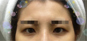 Hidden eyelids and Forehead fat grafting