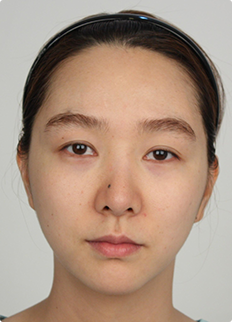 Cheekbones reduction, incision eyelid surgery, fat grafting, nose revision surgery