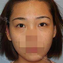 Incisional Double Eyelid, Lateral Canthoplasty, Eyelid Fat Removal