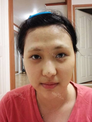 Eyes, Nose, Fat Transfer Experience at ITEM PS in Korea