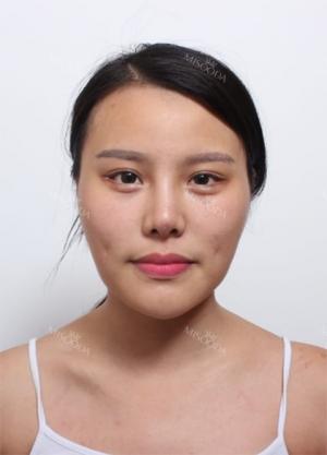cheekbone + jaw reduction + chin revision