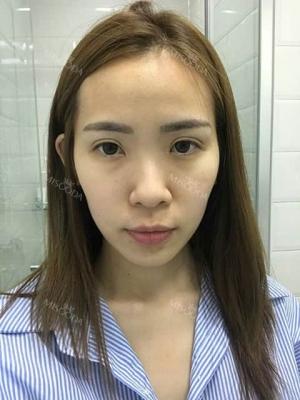 Jaw Reduction, Rhinoplasty and Breast Augmentation in Korea